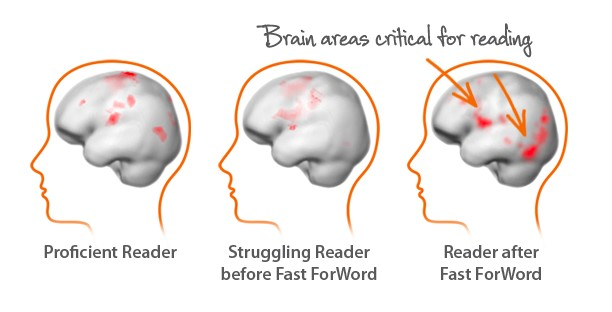 Brain_images.jpg